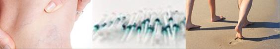 Verödungstherapie zur Krampfaderbehandlung, Laser, Venen, Sklerosierung , Verödung