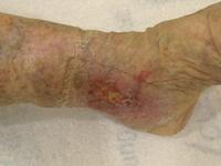 Ulcus cruris, Krampfadern, Venen, Behandlung notwendig