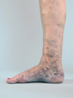 Krampfadern, Besenreiser, Behandlung erst nach Ultraschalldiagnostik, Laser, Radiowelle