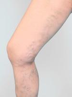 Krampfadern , Stammvarikosis, Vena saphena magna, beste Behandlung ist Stripping oder Laser oder Radiofrequenz