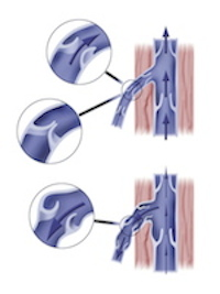Krampfadern, Behandlung durch Crossektomie, Venen, Vena saphena magna und parva, Klappenschwäche