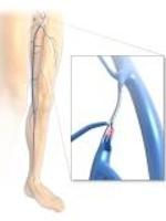 Laser , Behandlung, Therapie, Krampfadern , Varikosis, Venen, Varicosis, Arzt